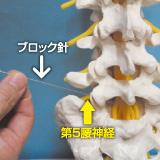 注射 神経 効き目 ブロック 根